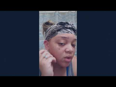 Vlog# 8 How to clean Industrial piercing & Healing Hypertrophic scar bubbles at home