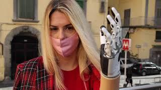 «Diventerò fotografa», la sfida della ragazza con la mano robotica