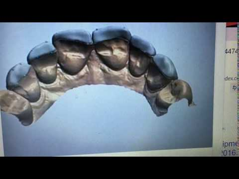 Mega Dental Veneer CAD CAM