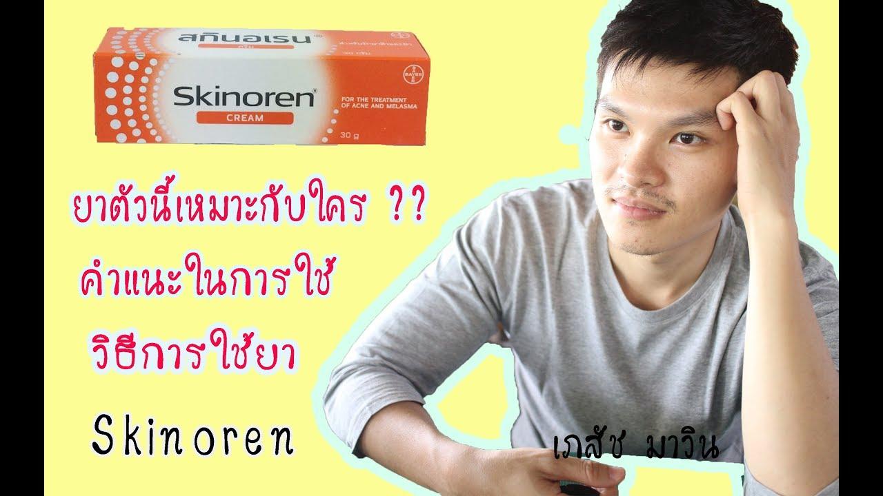 รีวิวยารักษาสิว Skinoren เหมาะกับใคร คำแนะนำในการใช้ โดยเภสัชมาวิน