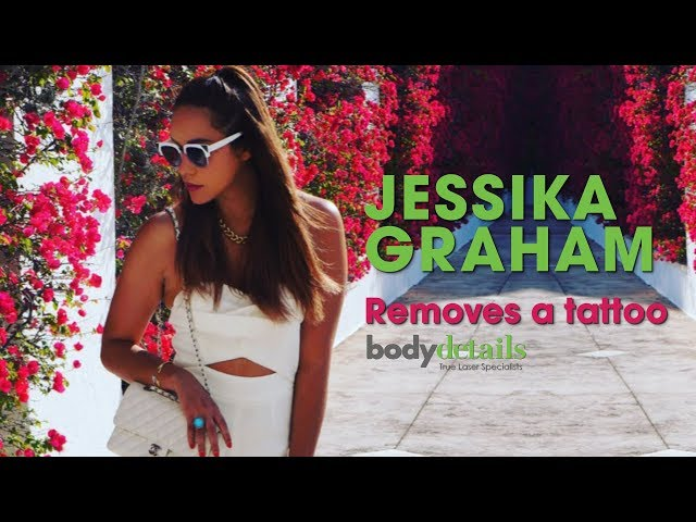 Laser Tattoo Removal Experience | Jessika Graham | Body Details