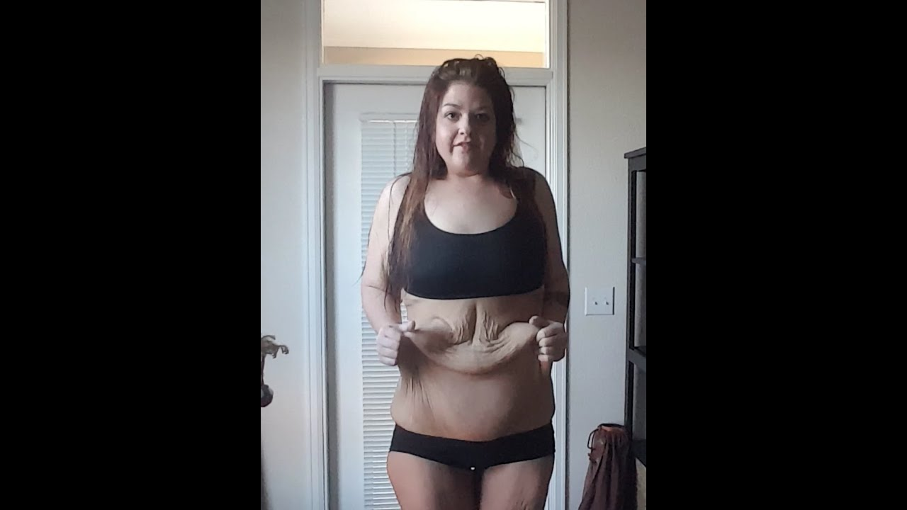 how to avoid loose skin when losing weight