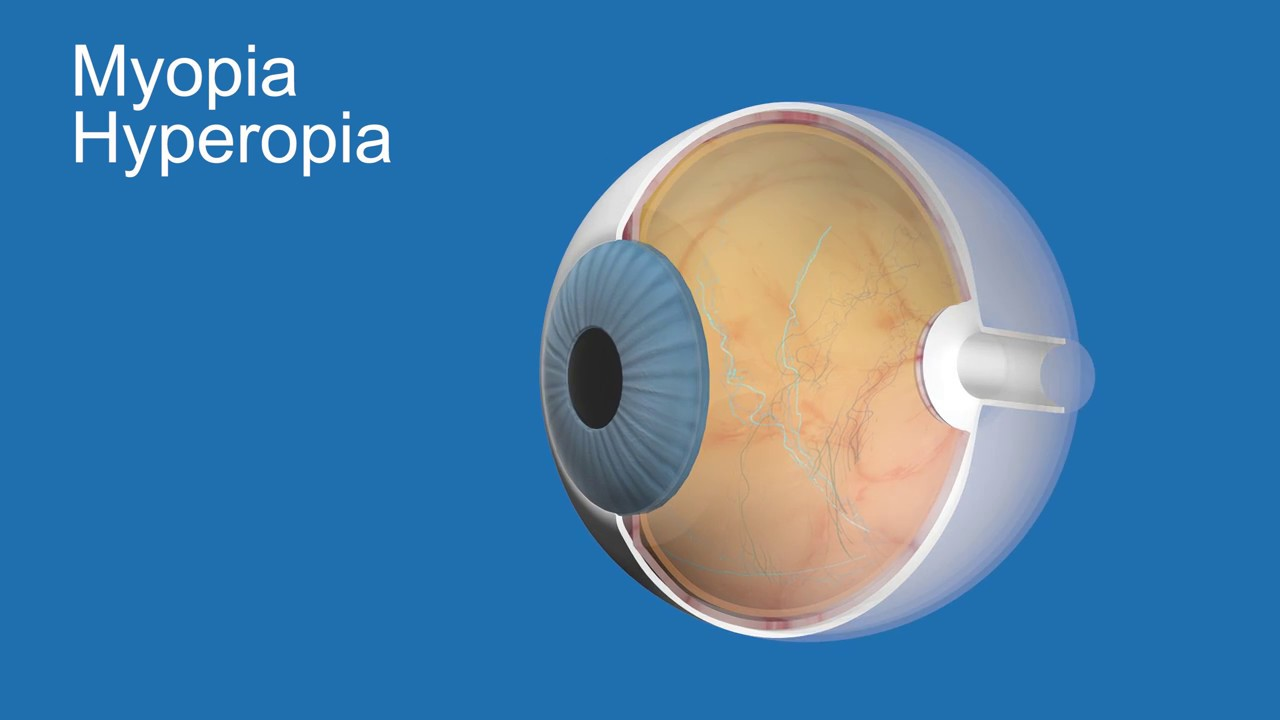 distinguish between myopia and hyperopia and The symptoms of farsightedness and presbyopia are similar  farsightedness, or hyperopia  or adjusting focus between far-away and nearby objects is difficult.