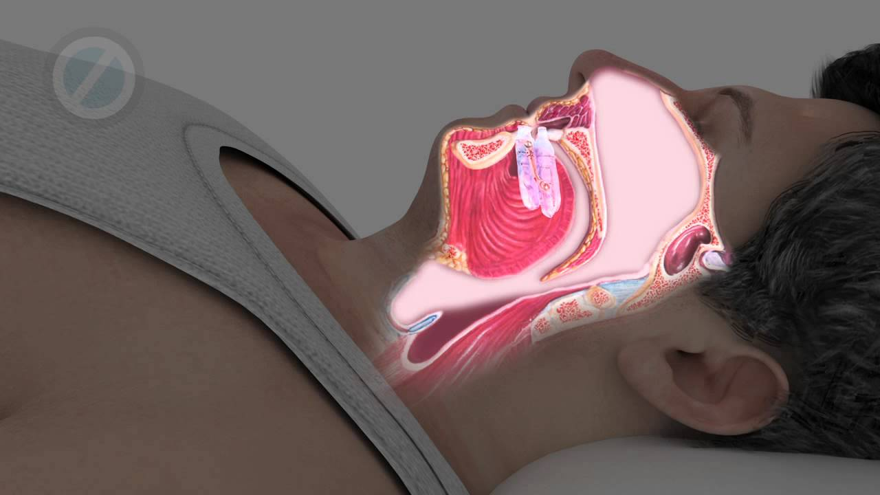 tramadol central sleep apnea