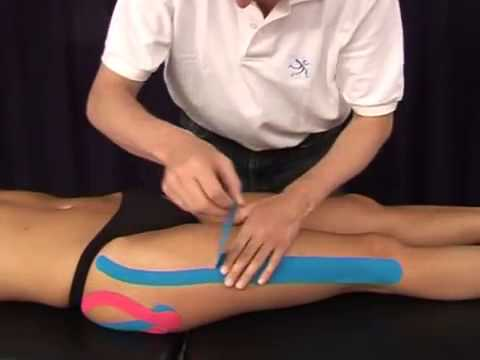 Hip with CureTape kinesiologie tape (Medical Taping Concept)
