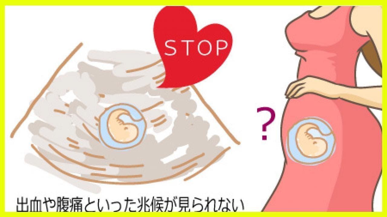 流産 腹痛 繋留