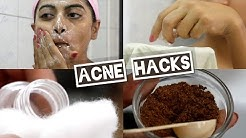 Acne - 5 Acne Hacks & How to Treat Acne Prone Skin | 5 Face Wash Tips