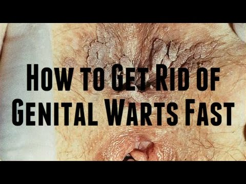 How to get rid of anal warts