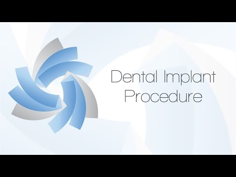 Dental Implant Procedure Information | Charleston Oral & Facial Surgery | Charleston SC