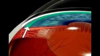 What is Glaucoma? Explained using Animation.