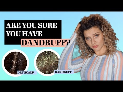 THE DIFFERENCE BETWEEN DANDRUFF VS DRY SCALP + TREATMENTS