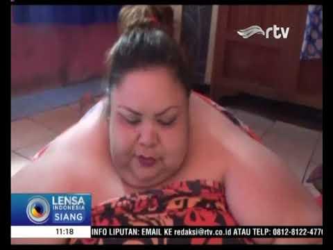 Titi Wati, Wanita dengan Berat Badan 350 Kilogram