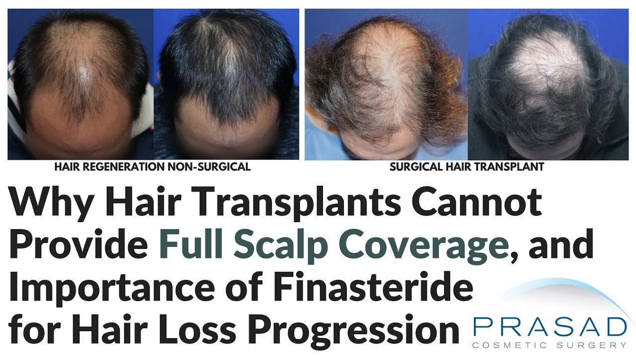 Why Hair Transplants Are Not Advised For Young Men And Cannot Provide Full Scalp Coverage