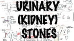 hqdefault - Kidney Stone Formation Time