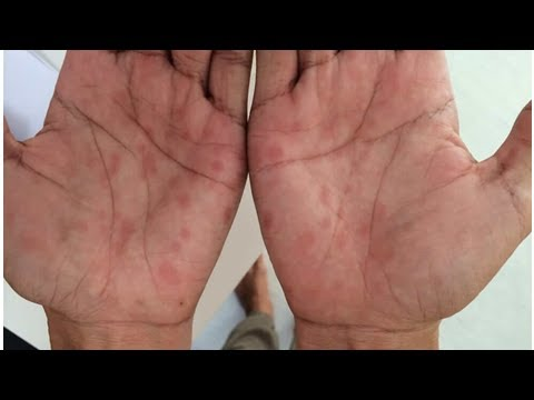Primeros síntomas de la sífilis, ¡aprende a detectarla!