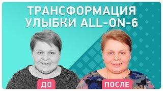 #ТрансформацияУлыбки Елены Молодцовой 👉 как проводится установка имплантов и протезов