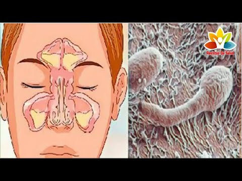 ¿nariz-obstruida,-rinitis-o-sinusitis?-¡su-problema-estÁ-en-el-intestino-–-sepa-cÓmo-resolver!