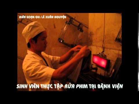 Kỹ thuật rửa phim trong buồng tối x quang