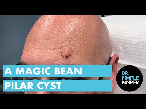 Dr. Pimple Popper Just Popped 'Magic Bean' Pilar Cyst On A Man's Forehead