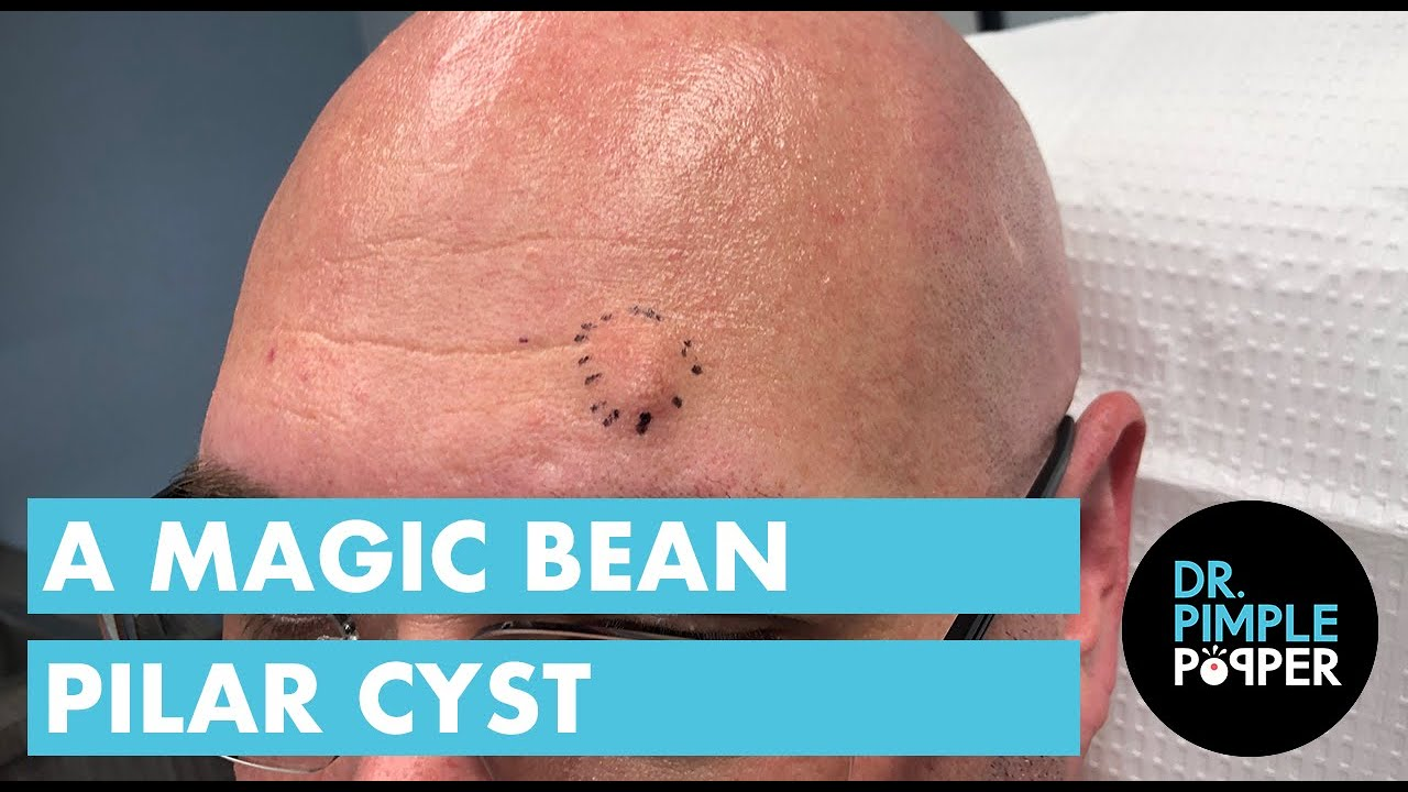 Dr  Pimple Popper Pops 'Magic Bean' Pilar Forehead Cyst On Youtube