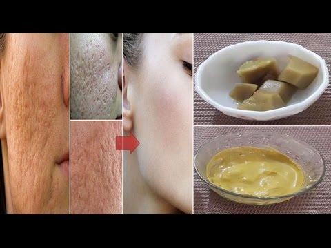 चेहरे के खुले रोम छिद्र और गड्ढो को हमेशा के लिए खत्म करें | How to remove open pores| Pooja Luthra