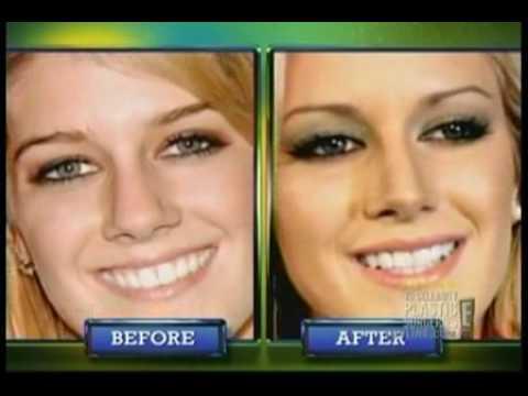 "Heidi Montag's ""Revenge"" Plastic Surgery"