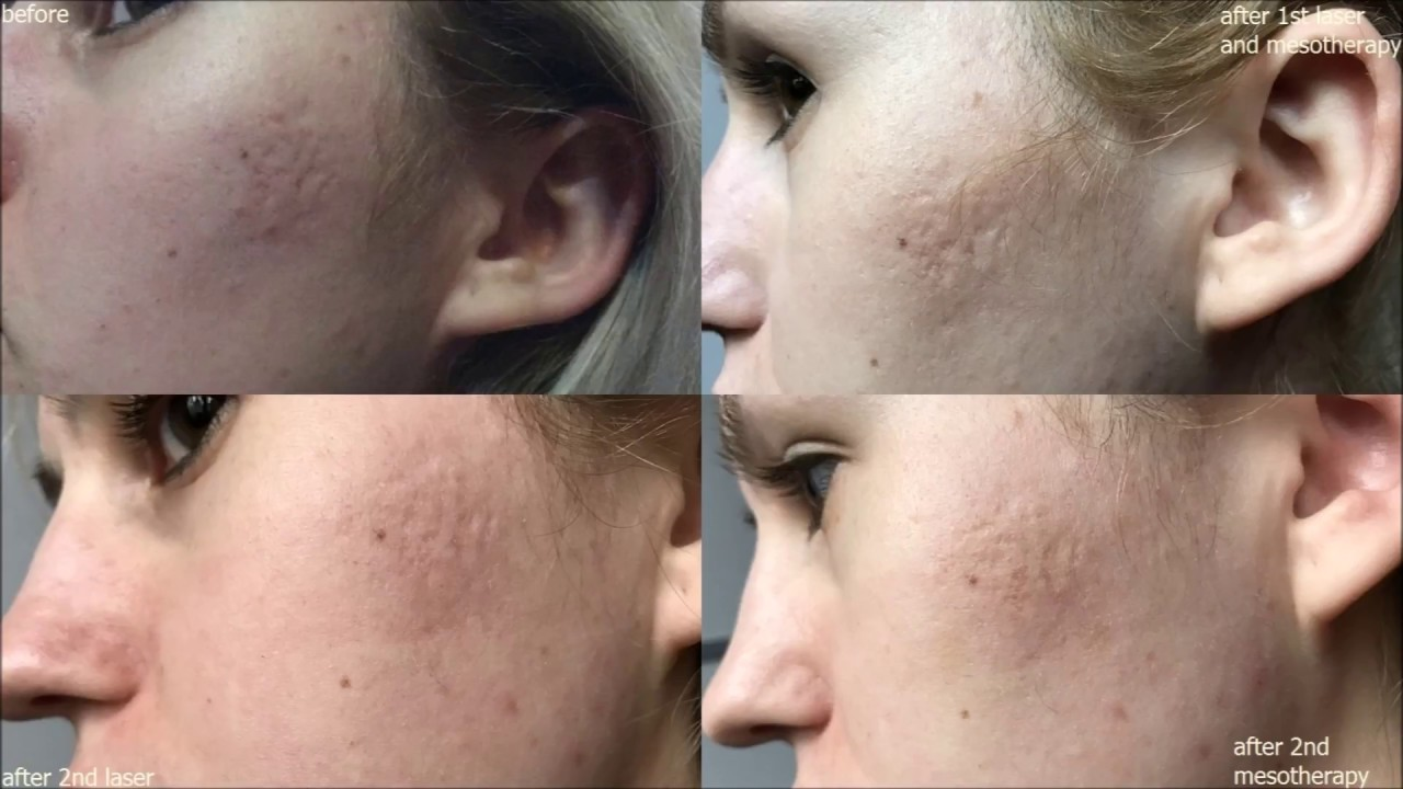 photos before and after - fractional co2 laser & platelet-rich plasma  mesotherapy