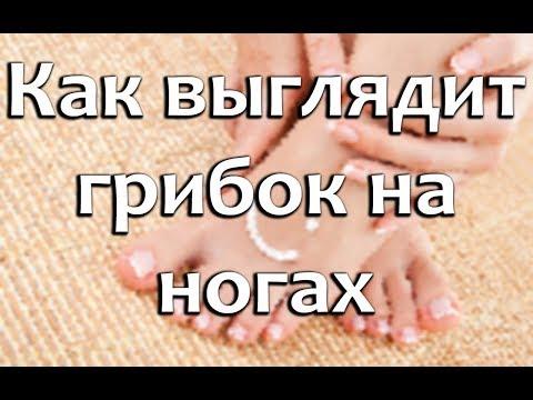 У ребенка грибок ногтей на ногах фото