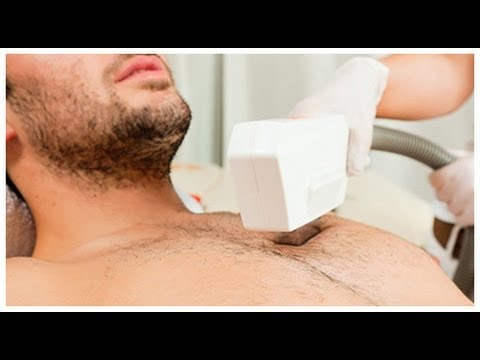 laser hair removal miami for dark indian skin some facts