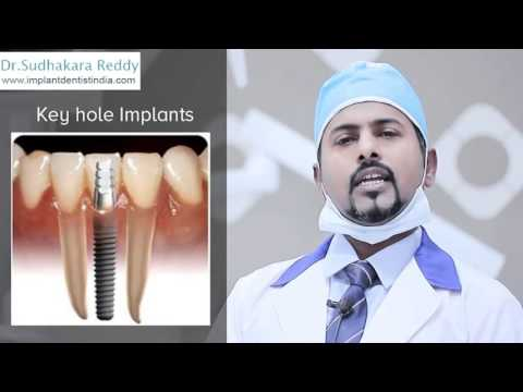 Best Dental Implant Surgeon in Bangalore | Tooth Replacement India