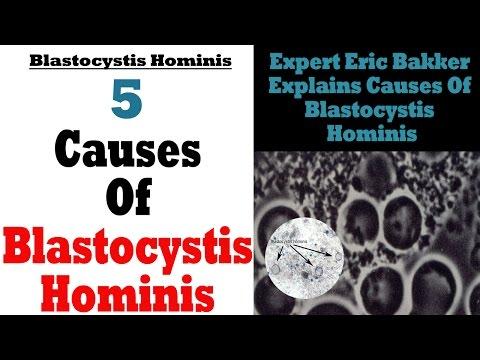 Blastocystis Hominis Natural Remedies Treatment