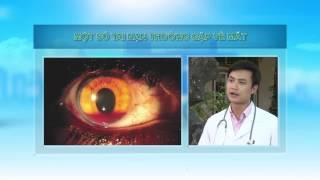 Cách cấp cứu khi bị tai nạn thường gặp về mắt