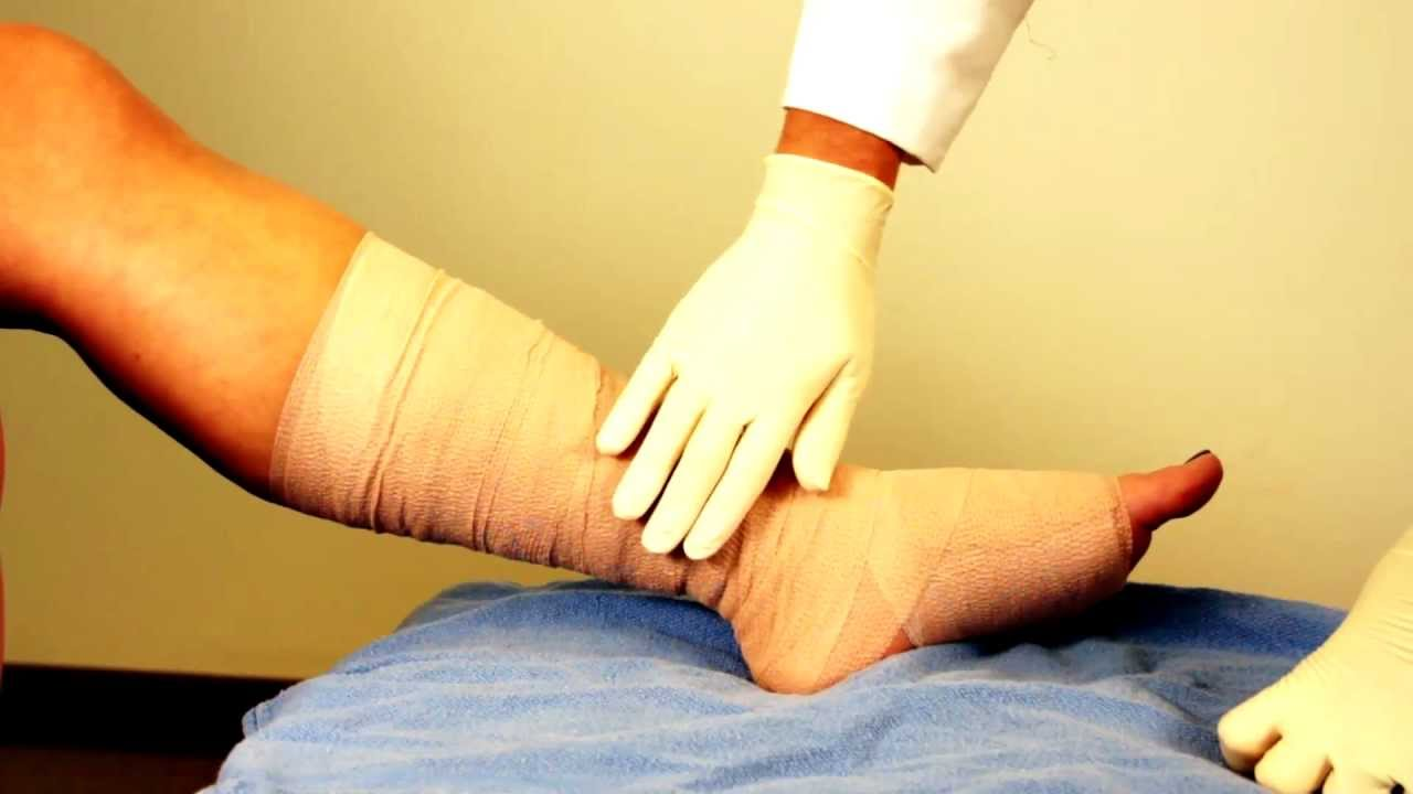 Multi Layer Compression Wraps For Venous Ulcers
