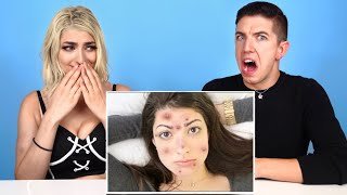 Specialist Reacts To My Weird Acne Life Hacks with Hyram!