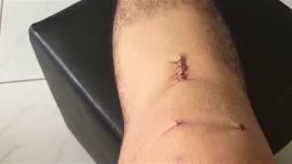 Coágulo após artroscopia sinais sanguíneo do joelho de