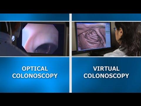 Colonoscopy screening: Virtual vs. optical colonoscopy