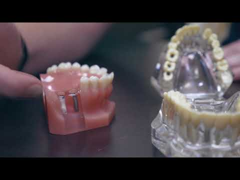 Free Dental Implant Consult at Southern Dental Care