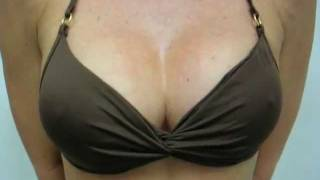 Fixing The Botched Boob Job in Orange County California - OcBody.com