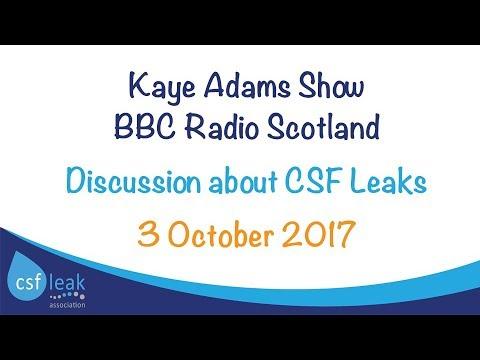 CSF Leaks Discussion - BBC Radio Scotland -  Kaye Adams Show -  3 October 2017