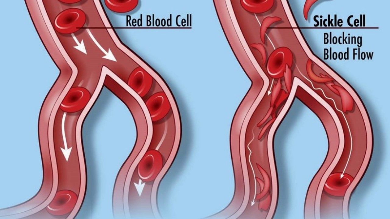 Can sickle cell disease be dangerous