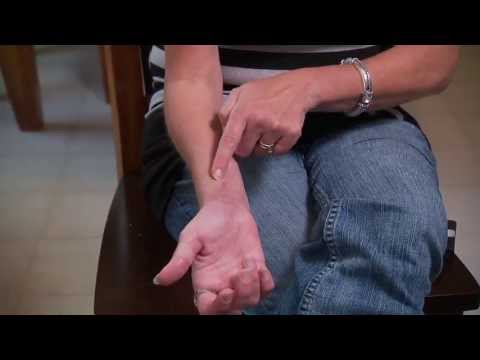 Cat Bites and Wound Care - Mayo Clinic