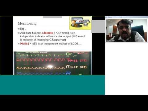 Cardiac ICU case scenarios by Dr Amit Chitalia