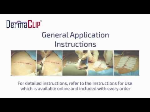 How to Apply a DermaClip: Closing a Wound Without Stitches
