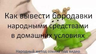 Копия видео Как вывести бородавки народными средствами заговоры(, 2015-05-14T07:09:27.000Z)