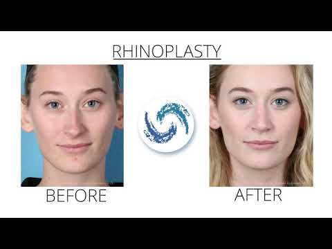 Rhinoplasty | Holcomb Kreithen Plastic Surgery