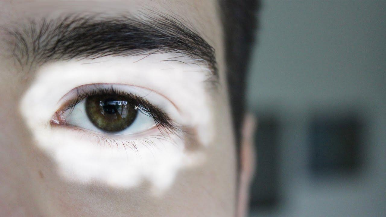 Ich rede über meine Krankheit - Vitiligo - YouTube