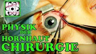Physik der Hornhaut-Chirurgie (Ad_Math#32) [Compact Physics] Thumbnail
