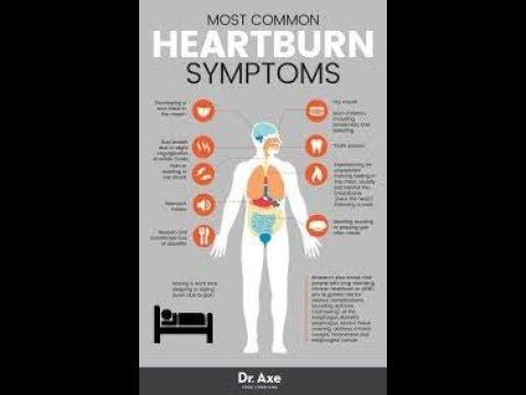 Heartburn! Acidity!!hyperacidity  homeopathic medicine