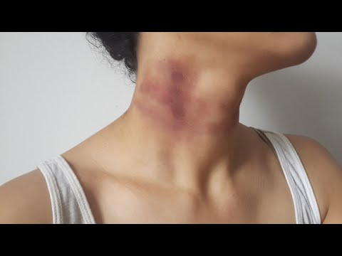 How To Get Rid Of Bruises Fast Overnight On And Face Naturally