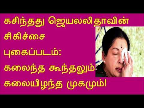 கசிந்தது ஜெயலலிதாவின் சிகிச்சை புகைப்படம்:  Leaked Jayalalitha's treatment photo: